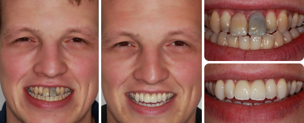 187 Missing Front Teeth Kaizen Dental Implants
