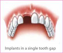 implant-treat-img1