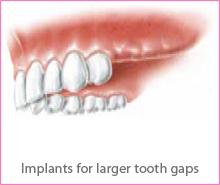 implant-treat-img2