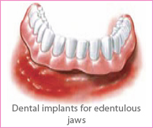 implant-treat-img3