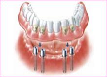 implant-treat-img6